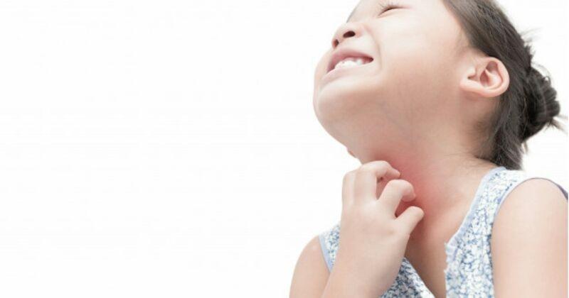 Beberapa penyabab alergi yang paling umum